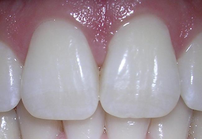 incisors.jpg