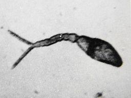 Schistosoma_Japonicum_cercaria.jpg